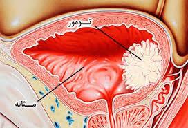 تومور مثانه