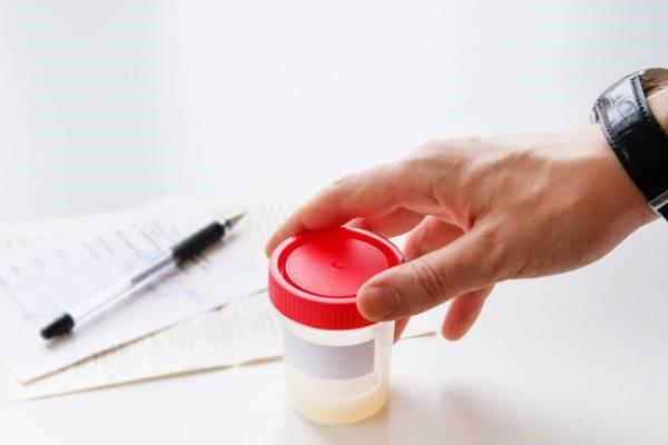 آزمایش باروری در مردان